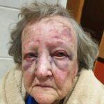 Südafrika: 80-jährige Frau von Schwarzen auf ihrem Hof brutal überfallen