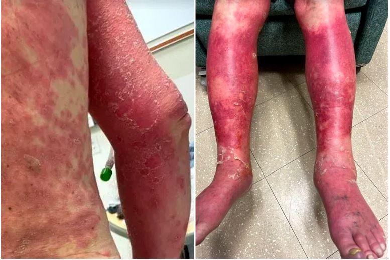 USA: Mann ging nach Corona-Impfung komplette Haut am Körper ab!